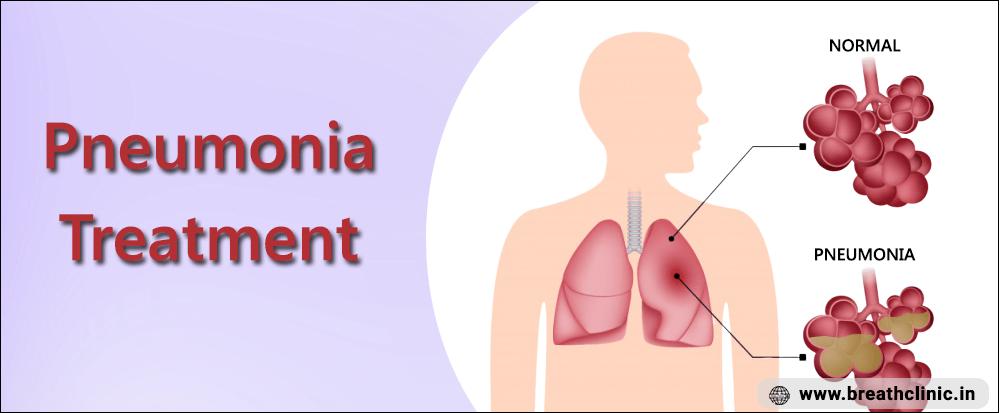 Pneumonia Treatment in Jaipur