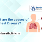 causes of Chest Disease